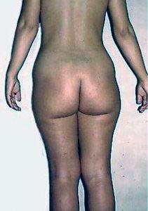 cellulite fiborsa
