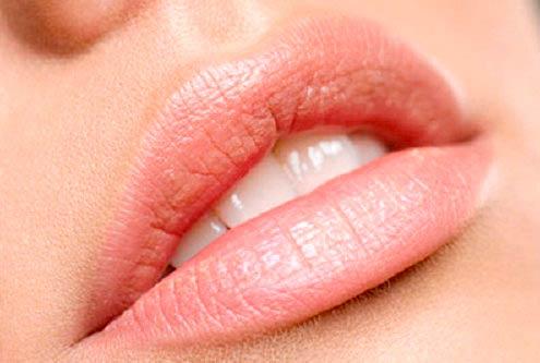 protesi per labbra